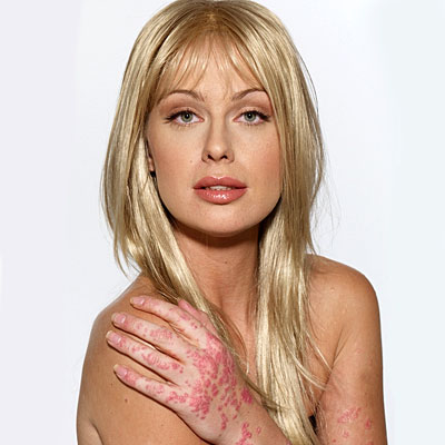 7 Famous Celebrities With Psoriasis Mylene C Orillo